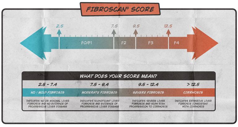 What is the fibroscan