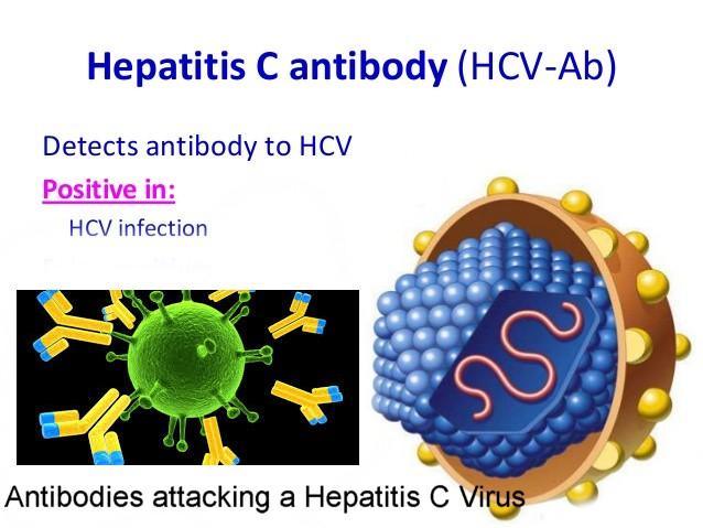Hepatitis C Antibody test