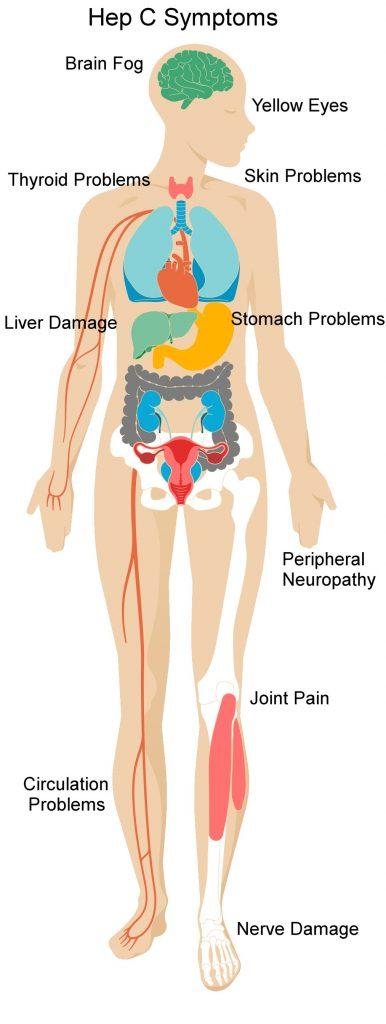 Hep C symptoms